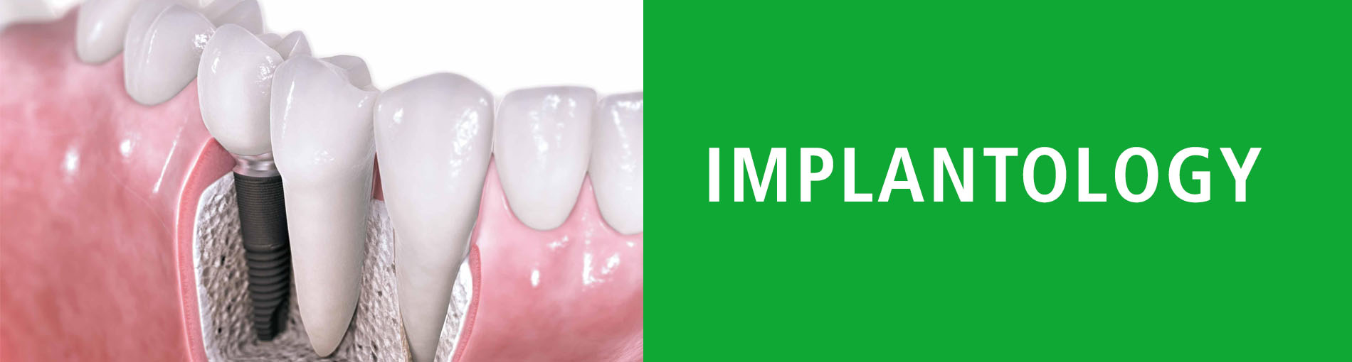 Implantology-Specialist-Dentist-Smile-White-smile-Healthy-smile-Patient-Success-Clinic-Clinics