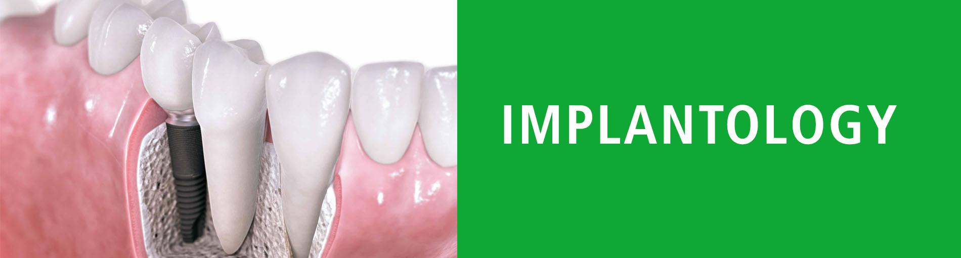 Implantology-Specialist-Dentist-Smile-White-smile-Healthy-smile-Patient-Success-Clinic-Clinics